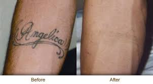 know what is laser tattoo removal its detail how it work all