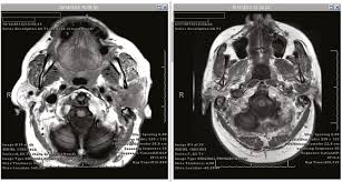 Carilion Clinic Family Medicine Southeast Diagnostic Error In Medicine Diagnosis