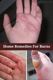 best 25 home remedies for burns ideas only on pinterest home
