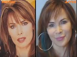 lauren koslow hairstyles through the years lauren koslow plastic surgery before and after plastic surgery book
