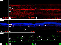 histologic characterization of retina neuroglia modifications in