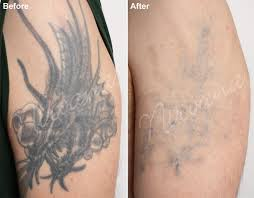 tattoo removal very tattoo