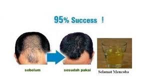 membuat minyak kemiri untuk rambut botak bagi anda yang mengalami kebotakan ini manfaat minyak kemiri dan