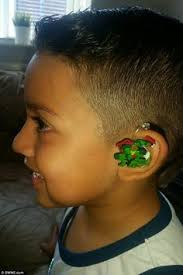 weave hair how in fife deaf got implant cochlear phonak hearing aids skinit customized skins and designs phonak