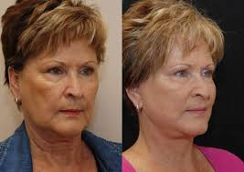 hairstyles that cover face lift scars mini facelift cincinnati oh
