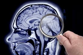 alzheimer u0027s may be preventable in a decade new york post