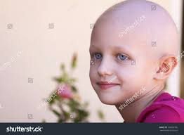 Hair Loss From Chemo Beautiful Child Cancer Hair Loss Due Stock Photo 159655766