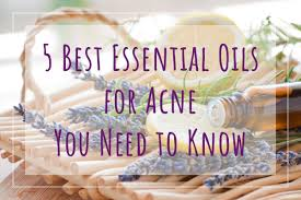 5 best essential oils for acne you need to know punica makeup