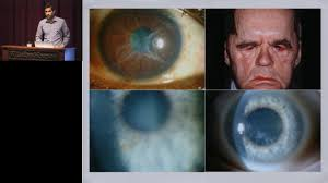 corneal dystrophies youtube