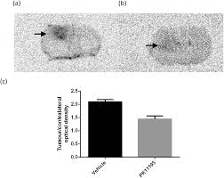 a novel 18 f labelled high affinity agent for pet imaging of the
