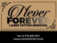 never forever laser tattoo removal ripley tattoo removal yell