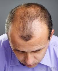 bald spor hair styles mens short hairstyles for thinning hair hairstyle foк women man
