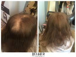peruci din par 21 best peruci de par poze cliente images on wig
