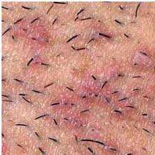 constant ingrown hairs on pubis ingrown hair signs and symptoms make health easy