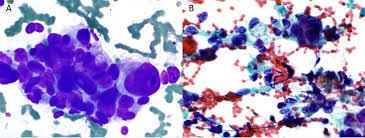 cytopathology glowm
