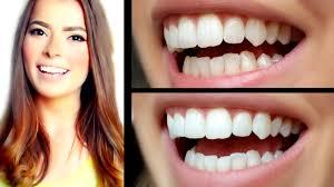 Einkaufen Zu Hause Weiße Zähne U2013 Bleaching Für Zu Hause Www Purepowerpanda Com Youtube
