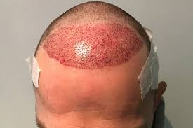 sean coronation street hair tansplant rugby league s top player gets 6 000 hair transplant after fans