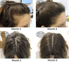 success story alert new female hair loss treatment entry