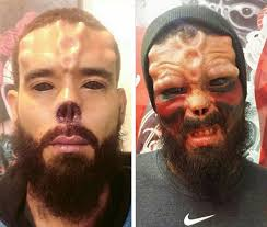 Old Man Tattoo Meme - guy has his nose cut off and face tattooed to look like marvel s
