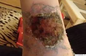 tattoo removal woman pours pure acid on arm in attempt to remove