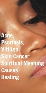 sun ls for psoriasis for sale acne psoriasis vitiligo skin cancer spiritual meaning and