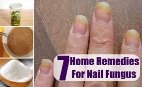 nail fungus home remedies natural treatments and cures lady