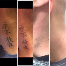 laser tattoo removal st james tattoo removal