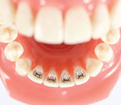 nickel free braces tongue trainers centric orthodontics
