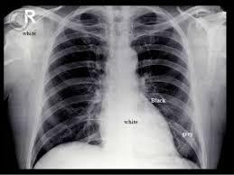 Radiology Anatomy Presentation1 Pptx Radiological Anatomy Of The Chest