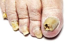 fungal nails in plano plano fungal nails fungus nails 75023