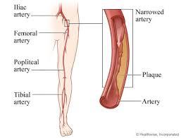 Foot Vascular Anatomy Peripheral Arterial Disease Of The Legs Overview
