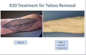 r20 laser tattoo removal tattoo removal how to u0027s