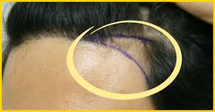 female balding at temples hairstyles 8 simple ways to treat hair loss at the temples