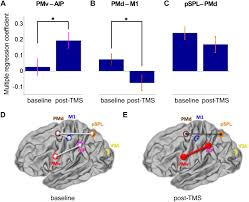 causal manipulation of functional connectivity in a specific