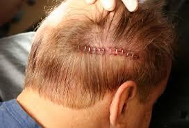 prescreened hair transplant physicians hair transplant clinic visit to dr joseph williams las vegas