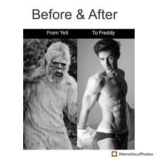 Meme Hair Removal - before after laser hair removal ad album on imgur