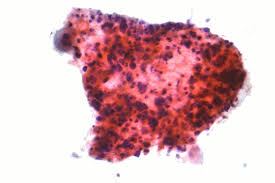 Small by Non Small Cell Lung Carcinoma Wikipedia