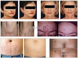 led light therapy for skin new pdt led light therapy machine spl 2 0 light therapy system skin
