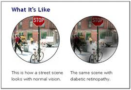 How Does Diabetes Cause Blindness Age Related Causes Of Visual Impairment U2014 Lions Center For The