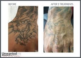 hand tattoo removal danielhuscroft com