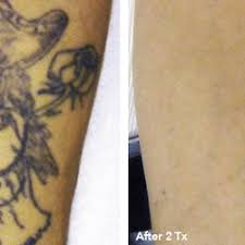 st pete tattoo removal tattoo removal 8130 66th st n pinellas