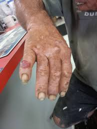ugliest one of my roofers has the ugliest hands in the world rebrn com