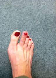 the infection of a toe the running year
