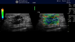 logiq f general imaging ultrasound categories