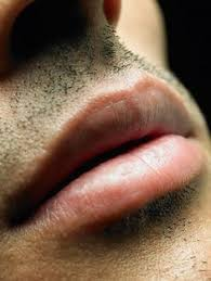 Challenge Wrong Herpes 22 Best How To Get Rid Of Herpes Images On