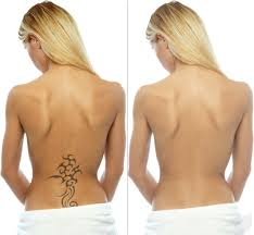 laser tattoo removal nuriss skincare and wellness centre