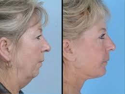 hairstyles for women with sagging necks chin cheeks sagging face and neck skin being lifted up with