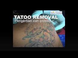 laser tato di jogja tatto removal menghapus tato surabaya skin centre tattoo youtube