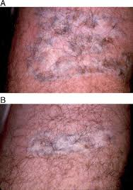 laser treatment of tattoos sciencedirect