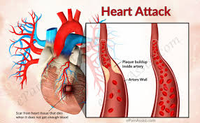Heart Wall Anatomy Heart Attack Or Myocardial Infarction Mi Causes Risk Factors